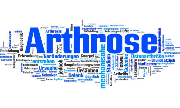 Aktiv und Beweglich trotz Arthrose