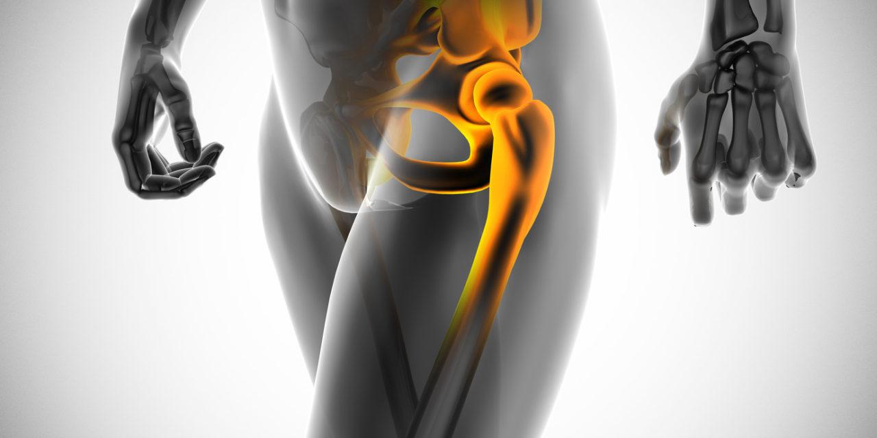 SuperPath Minimal Invasiver Gelenkersatz Hüfte