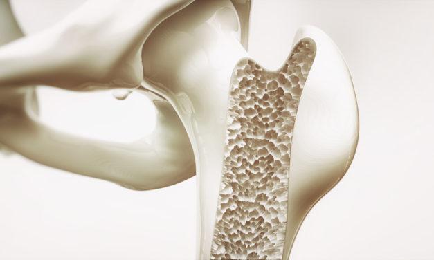 Stoffwechselerkrankung Osteoporose